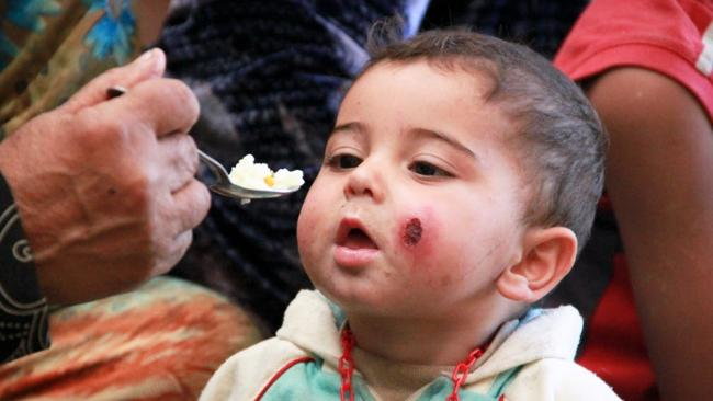 Nine-month old Syrian refugee Louay gets a meal.