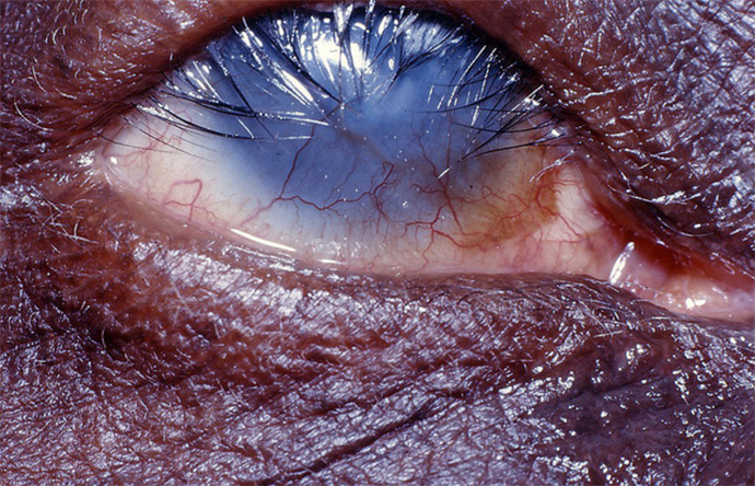 Trachoma leads to eyelashes turning inwards and scratching the eye, leading to blindness.