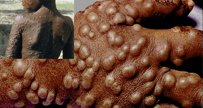 Smallpox examples